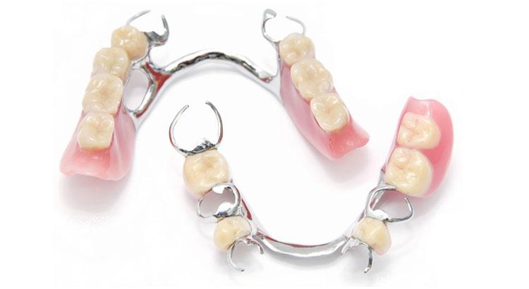 Total and partial dentures | Maksident Vrshkovski